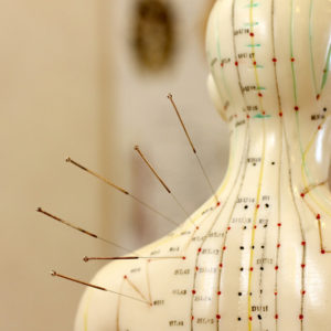 Acupuncture based in Mernda